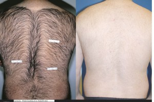 hair removal (2) before after